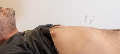 דיקור סיני למערכת החיסון